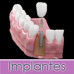 Implantes-dentales-alcala-de-guadaira