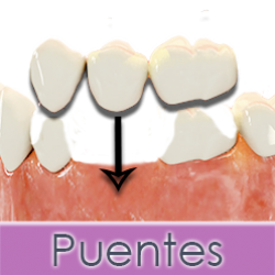 puente-dental